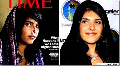 Bibi Aisha Before-After surgery
