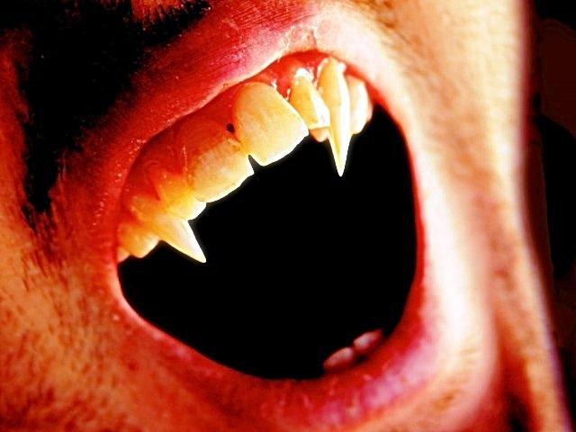 http://oneway2day.files.wordpress.com/2014/03/vampire-fangs-2.jpg