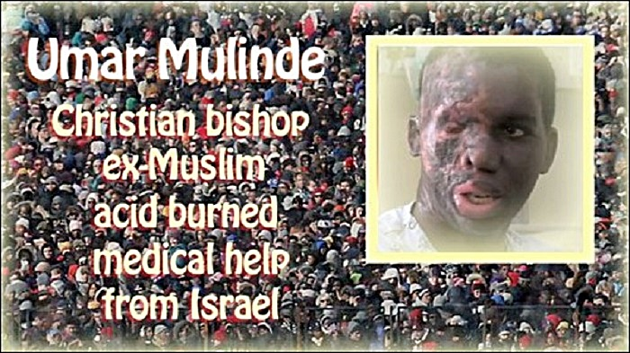 Umar Mulinde- acid burnt by Muslim & treated in Israel