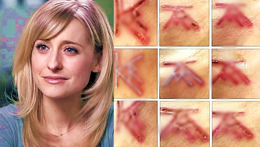 Allison Mack & blurred NXIVM flesh branding scars